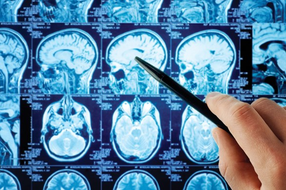 Healing Brain Injuries with Cannabis