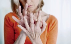 How can I use cannabis to help out with my rheumatoid arthritis?