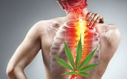 Marijuana Strains for Back Pain