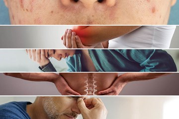 5 Health Conditions Alleviated by Cannabis Creams and Topicals